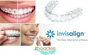 Image result for invisalign photos