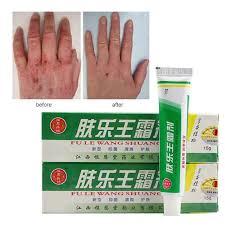 PRURITUS HERBAL CREAMS Eczema Psoriasis Dermatitis Skin Care ...