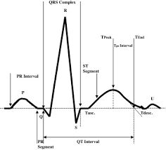 Ecg Chart Labeled Ecg Based Heartbeat Classification For Arrhythmia Detection
