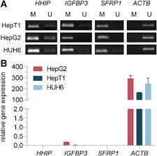 Overexpression Of Uhrf1 Promotes Silencing Of Tumor Suppressor Genes ...