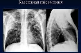 Пневмония при туберкулезе легких симптомы лечение и причины