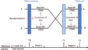 Antidepressant Washout Chart Flow Chart Of The Experimental Hf Rtms Treatment Procedure