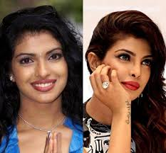 Image result for priyanka chopra lip surgery