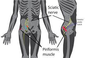 Leg Wikipedia Piriformis Syndrome Wikipedia