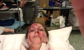 Image result for female trauma patient