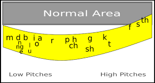 Hearing Banana Chart The Speech Banana The Hearing Curve