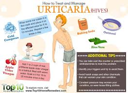 How to Treat and Manage Urticaria | Top 10 Home Remedies