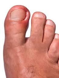 Foot Illness Chart 10 Common Foot Problems Everyday Health