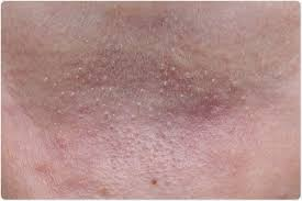 ly heat on the skin image credit charnsitr shutterstock