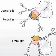 How a foreskin ups HIV risk | Health24
