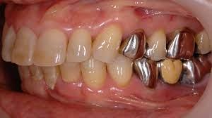 歯 周 病菌