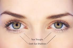 selston cosmetic clinic tear troughs dark eye shadows
