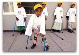 Image result for polio