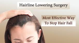 hairline lowering most effective way to