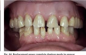 Teeth Setting Figure 44 From Aesthetic Possibilities In Removable