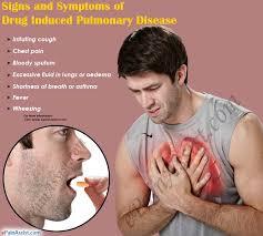 drug lung  DİSEASE ile ilgili görsel sonucu