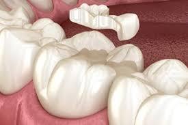 Dental Inlay Inlays Onlays Restorative Dentistry Creekview Dental