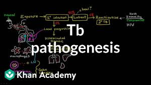 Pathophysiology Of Tuberculosis In Flow Chart Tb Pathogenesis