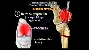 intramedullary nailing proximal tibial fractures everything you need to know dr l ebraheim
