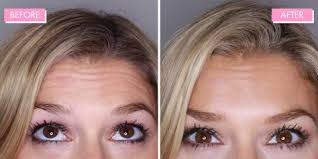 How Long Does Botox Last Botox Review 9 Things You Need To Know Before Having It
