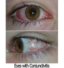 pink eye or conjunctivitis is one of the most frequent caused of emergency visits at skyvision centers dr white dr schlegel and dr kaye are all