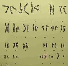 Trends in Survival Among Children With Down Syndrome in    Regions     Trisomy    Male Karyotype  middot  Trisomy    Female Karyotype