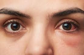 Eye Diseases Chart Eye Conditions Eye Infections Eye Diseases Eye Symptoms