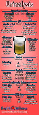 Normal Lab Values Nursing Chart Image Search Results | Good2Know ...