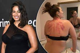 back-bruising gua sha body treatment