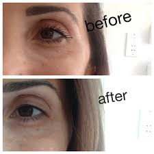 cream that works like botox the no botox temporary wrinkle busting cream the cosmedic coach