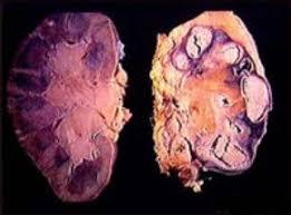 Туберкулез почек симптомы и лечение Туберкулез почек
