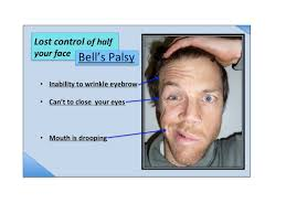 Bell s Palsy - what is, bell s Palsy?