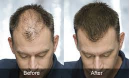 Male Pattern Boldness Impressive Male Pattern Baldness Do You Have These 48 Early Warning Signs