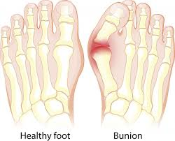 Flat Footed Flat Feet Symptoms Exercises Diagnosis And Treatment
