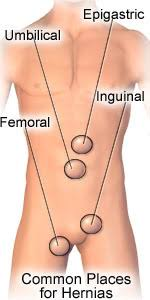Image result for hernia