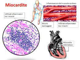 La miocardite