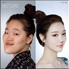 before after surgery in korea she never learned to embrace her own beauty