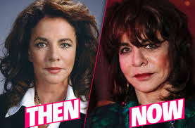 Stockard Channing Plastic Surgery Nightmare Exposed By Cosmetic ...