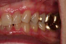 Image result for gold tooth