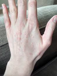 Itchy red bumps all over my hands. What's causing them? |