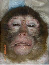 Why is monkeypox called monkeypox?