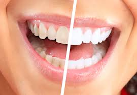 are you considering getting your teeth whitened over the counter strips gels and trays can offer some mild results but they re nothing compared to a