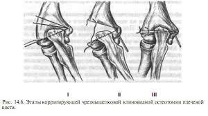 Переломы костей у детей Травматология и ортопедия Детские  Переломы костей у детей