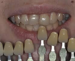 Cases Of In Office Bleaching Prestige Dental Care