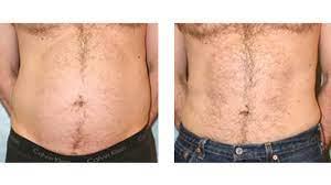 coolsculpting vs liposuction cost