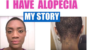 Baldness Hair Style alopecia areata my hair loss journey with pictures 2013 youtube 7006 by wearticles.com
