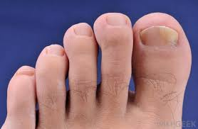 fungus may become an issue with artificial toenails