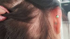 traction alopecia how to prevent and