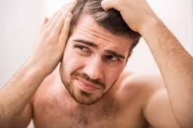 Prevent Male Pattern Baldness