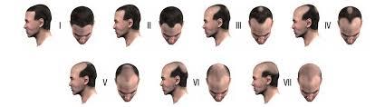 Male Pattern Baldness Causes Mesmerizing Male Pattern Baldness ZakSkinCare